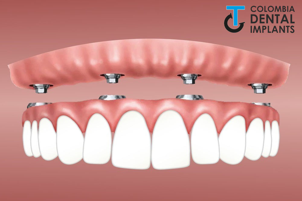 all-on-4-dental-implants-in-colombia